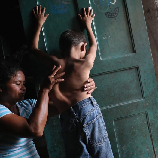 SAN PEDRO SULA, HONDURAS - AUGUST 20:  Sonia Morales massages the back of her son Jose Issac Morales, 11, at the door of their one-room home on August 20, 2017 in San Pedro Sula, Honduras. The mother of three said that her son's spinal deformation began at age four, but has never been able to afford the $6,000 surgery to correct his spinal condition. The boy's father, Issac Morales, 30, said he tried to immigrate to the U.S. in 2016 to work and send money home but was picked up by U.S. Border Patrol officers in the Arizona desert and deported back to Honduras. Honduras is consistently ranked one of the poorest nations in the Western Hemisphere and has one of the highest murder rates in the world. The poverty and violence have driven immigration to the U.S. although the numbers of U.S.-bound immigrants has dropped greatly during the first months of the Trump Presidency.  (Photo by John Moore/Getty Images)